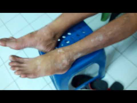 Eczemas em uma virilha na criança