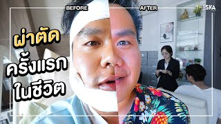 Braces Journey EP.2 Jaw Surgery Before Braces... How Much Do I Change?
