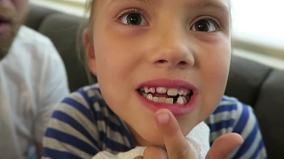 HOW TO PULL OUT A TOOTH!