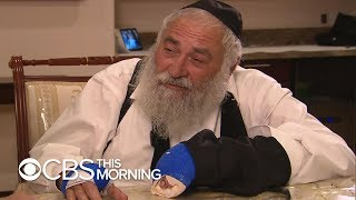 """Rabbi Injured In Poway Synagogue Shooting: """"I Saw The Face Of This Murderer"""""""