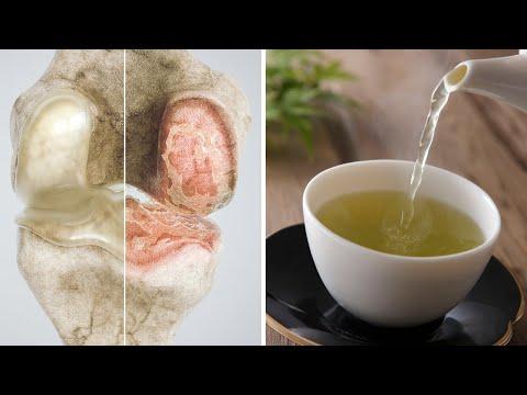 Unguent ameliorează umflarea și durerile articulare