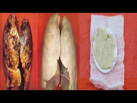 Hipertenzija i dijabetes lijek sah