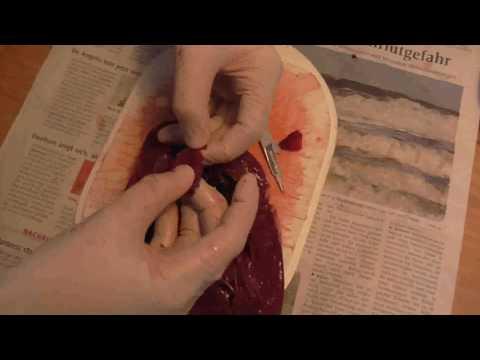 Die Präparate von den Würmern des breiten Spektrums für die Kinder