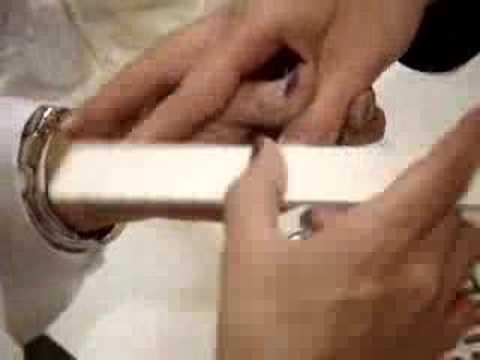 Chi ha trattato un fungo di risposte di aceto di unghie