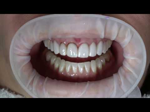 e.Max Veneer Removal with Hard Tissue Laser