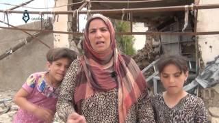 أم من قرية الهول ريف الحسكة تروي معاناة طفلها المحروق