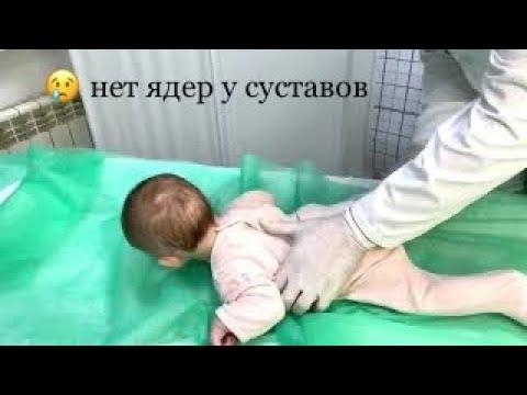 😢Нет ядер окостенения у ребёнка, ядра отстают  в развитии. Дисплазия и детский врач!