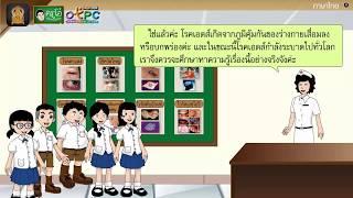 สื่อการเรียนการสอน อ่านเสริมเติมความรู้เรื่อง ทำความเข้าใจกับโรคเอดส์ ป.4 ภาษาไทย