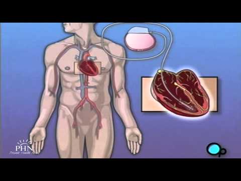 Pacemaker Implant Surgery