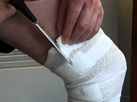 เลเซอร์กำจัดเส้นเลือดขอดในมอสโก