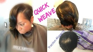 Quick Weaves 💖 Dont Go BALD From Quick Weave... DETAILES! Must SEE💖