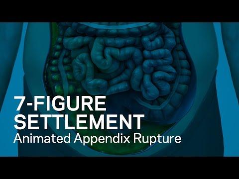 7-Figure Settlement: Animated Appendix Rupture