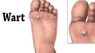 preview picture of video 'Foot Warts (Plantar Warts) - Greensburg, Somerset, Mount Pleasant, PA - Podiatrist Shawn Echard'
