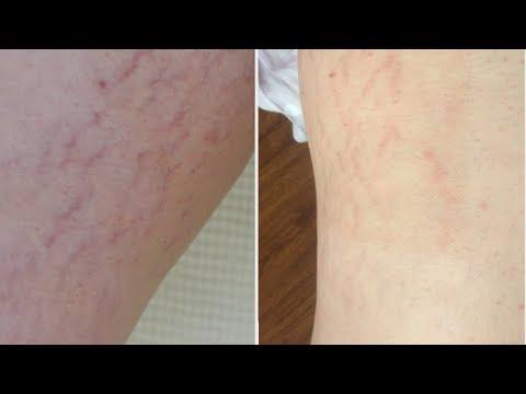 Лазерное удаление татуажа век москва