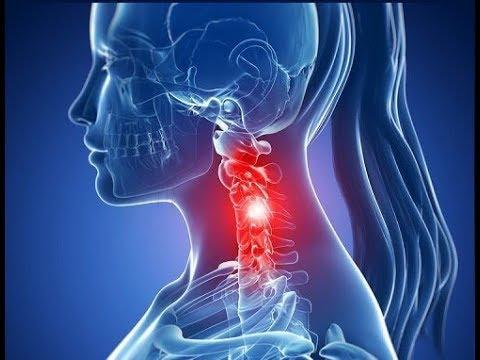 Mal di testa con la pressione sul collo