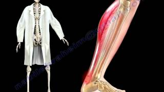 Achilles Tendon Stress & Strain - Everything You Need To Know - Dr. Nabil Ebraheim