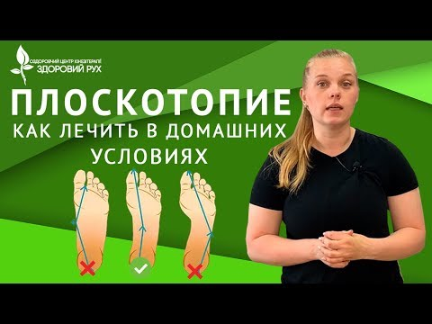 10 упражнений при плоскостопии у детей в домашних условиях   КИНЕЗИТЕРАПИЯ