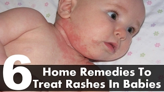 Natural and Organic Home Remedies for Baby Rashes
