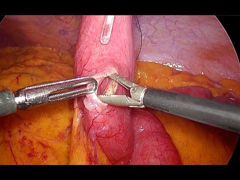 Wytworzenie jejunostomii odżywczej metodą laparoskopową