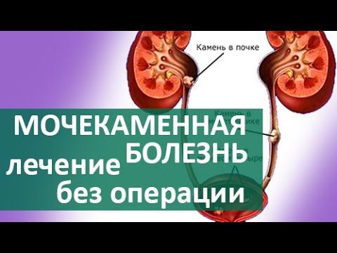 Гепатит с боль в спине