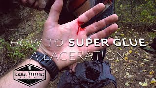 How to Super Glue a Laceration