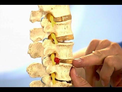 Массаж коленного сустава при вальгусе