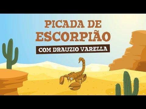 Imagem ilustrativa do vídeo: PICADA DE ESCORPIÃO (com Drauzio Varella)