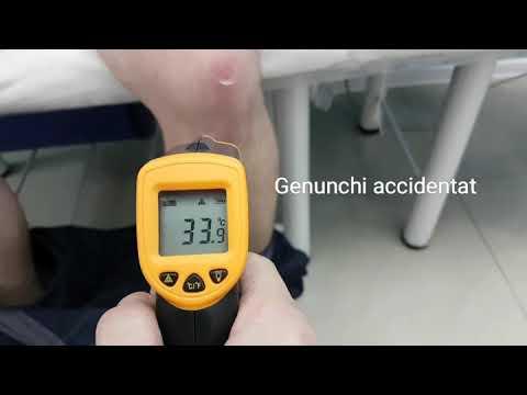 Unguente osteochondroza lombară