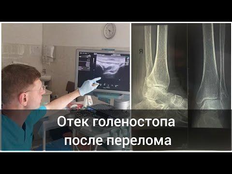 Отек голеностопного после перелома лодыжек голеностопного сустава
