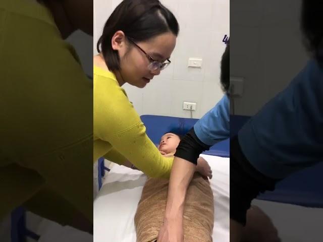 Cây chỉ chữa bệnh sụp mi bẩm sinh cho cháu Đỗ Hoài An 3 tuôi - Hải Dương