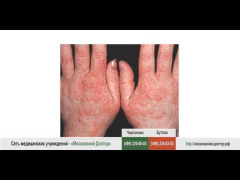 Отбеливающий крем от пятен после болячек