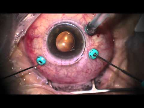 Vitrectomy for Retinal Detachment with Macular Pucker