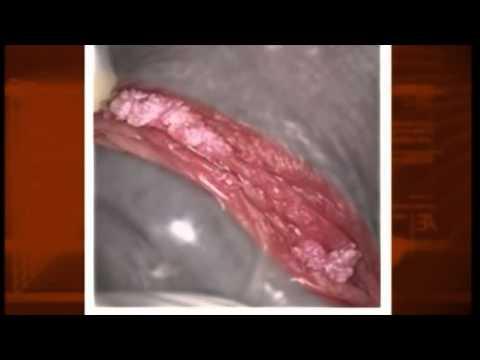 Giardia ในอาการตับ
