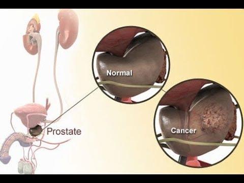 Stagnant prosztatitis otthoni kezelésben