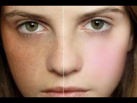 Cream Vichy mga review ng pigment spots