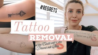 LASER TATTOO REMOVAL/ Before & After/ Best Laser/ COST, PAIN and WHY I'm removing them!