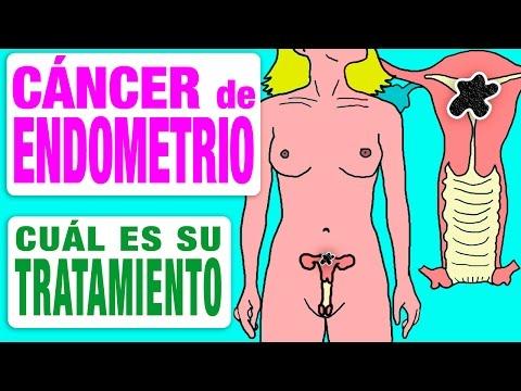 Cervical cancer figo 2019