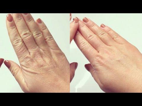 Trockene & Raue Hände schnell behandeln I Innerhalb Stunden zu weicher Haut I Marina Si