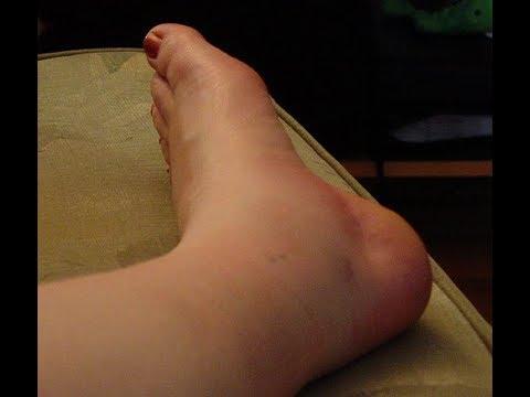 La douleur dans les jambes quand une pincée de sucre dans le sang