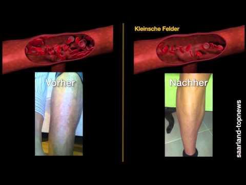 Selenograd die vaskulösen Sternchen