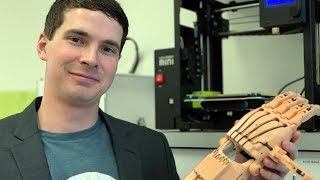 3D printing firm seeks help to make better hands