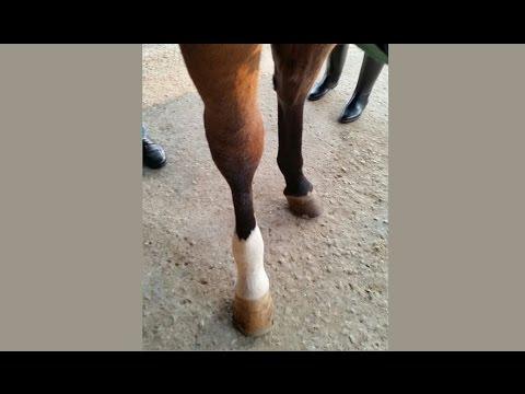 Lesione di vene su una gamba