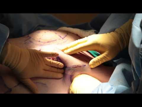 Boni dibdib bago surgery