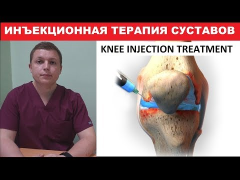 Лечение (инъекция) коленного сустава | Knee Injection Treatment | Инъекционная терапия суставов