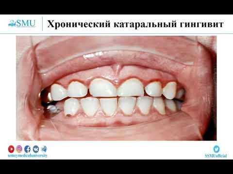 «Классификация заболеваний пародонта. Этиология, патогенез, клиника, диагностика гингивитов».