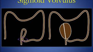 Cecal and sigmoid volvulus version 1 0 edit