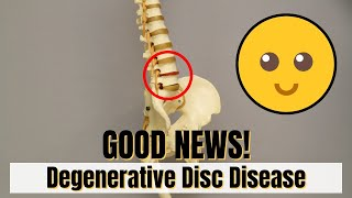 Good News!! If diagnosed with DDD (Degenerative Disc Disease) Must Know This!!