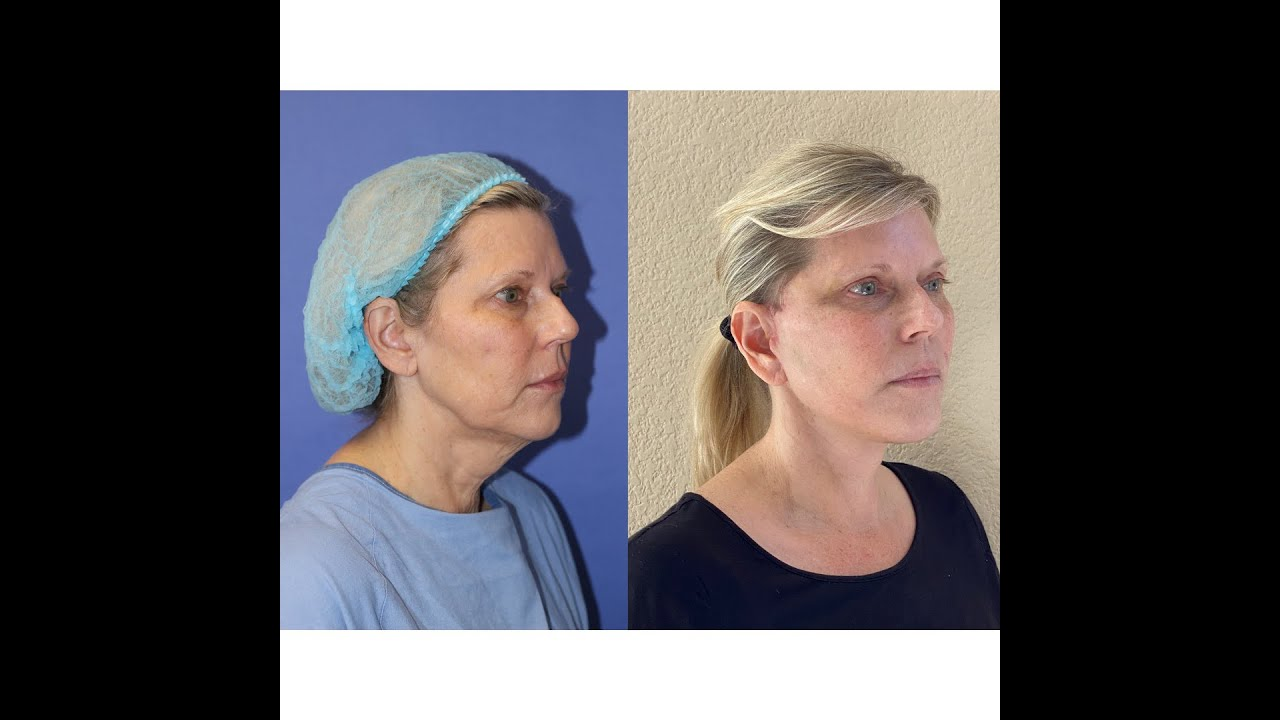 the goal of a natural looking facelift video