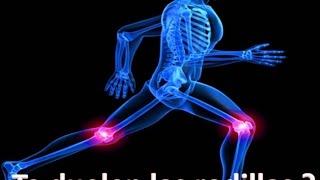 Te dueles las rodillas podrias tener artrosis