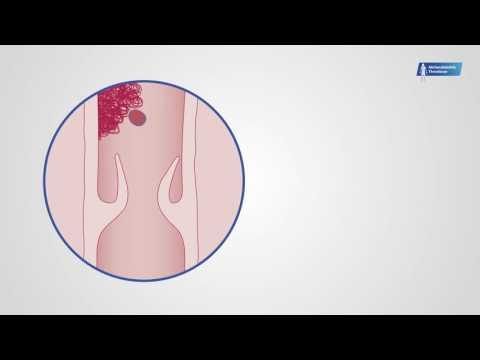 Der blaue Ton bei der Zellulitis und warikose